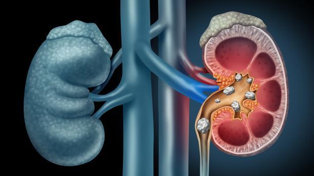 colique néphrétique et réflexologie